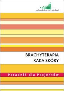 Brachyterapia raka skóry - poradnik
